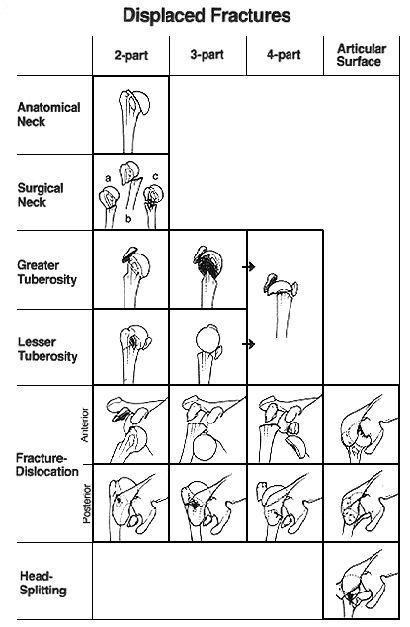 上腕骨近位端骨折 neer分類