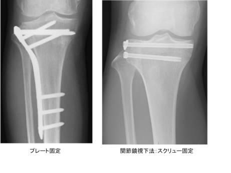 脛骨 固定術