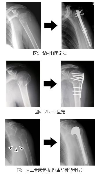 上腕骨近位端骨折 手術