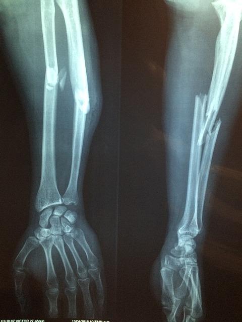 前腕 骨折